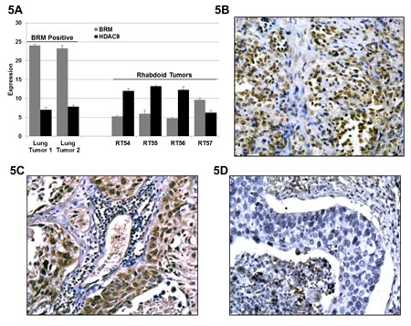 A Three BRM-negatives, 1 BRM-positive Rhabdoid and 2 BRM-positive lung tumors (positive controls) were analyzed for HDAC9 expression by qPCR.
