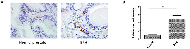 Immunohistochemical staining of human normal prostates and BPH tissues using anti-tryptase antibody.