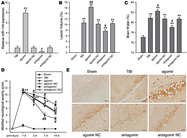The impacts of regulating brain miR-144 on brain injury and neurological deficits after TBI in vivo.