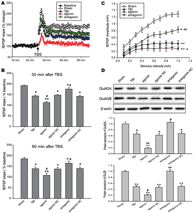 Effects of regulating brain miR-144 on LTP in NMDAR-dependent in rat hippocampal slices following TBI.