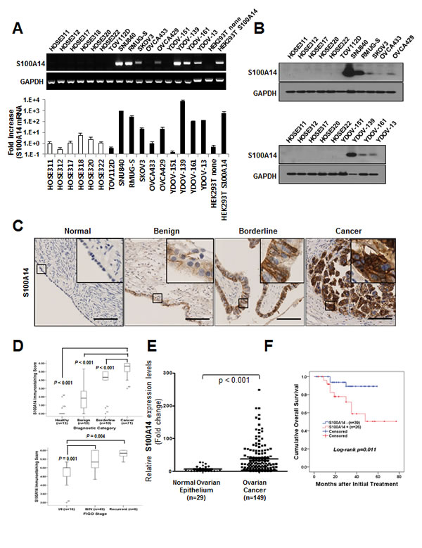 S100A14 is highly expressed in human ovarian cancer cells and tissue specimens, and its expression correlates with tumor stage and outcome of disease.