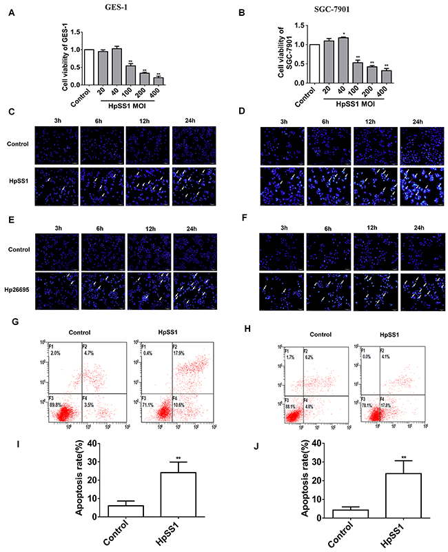 Effect of H. pylori on apoptosis of gastric epithelial cells.