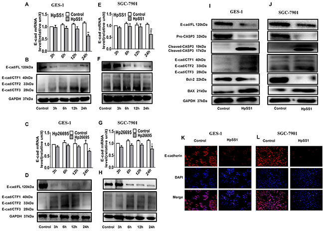 Effects of H. pylori on activation of caspase-3 and cleavage of E-cadherin in GES-1 and SGC-7901 cells.