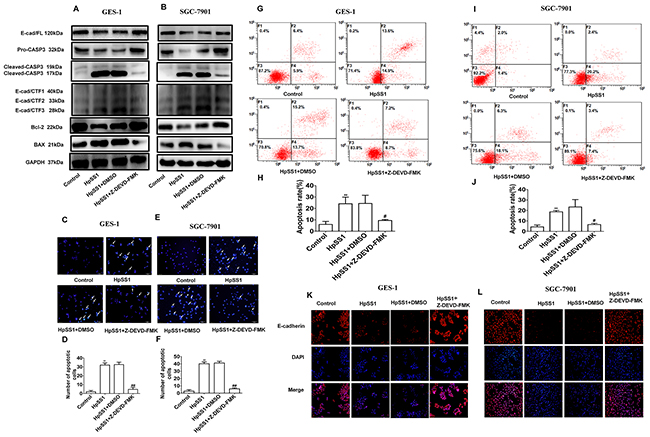 Effects of the caspase-3 inhibitor Z-DEVD-FMK on E-cad/CTF3 generation and cellular apoptosis induced by H. pylori.