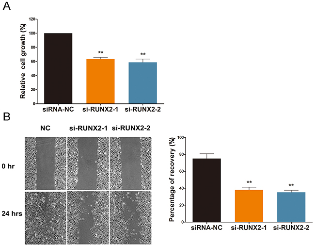 RUNX2 regulates cell viability and migration under ginsenoside Rg1 treatment.