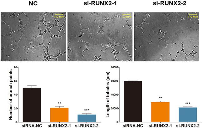 RUNX2 regulates ginsenoside Rg1-induced angiogenesis
