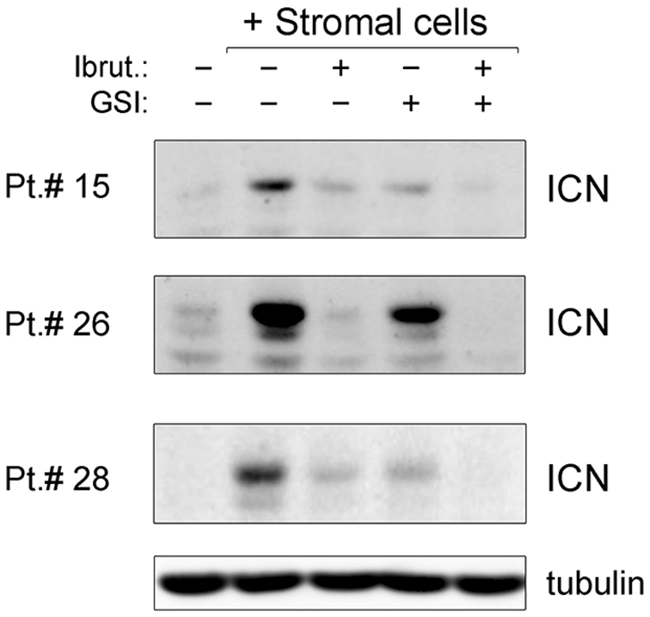 Down-modulation of NOTCH1 pathway by ibrutinib±GSI in primary B-CLL cell cultures.