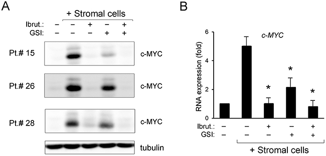 Down-regulation of c-MYC pathway by ibrutinib±GSI in primary B-CLL cell cultures.