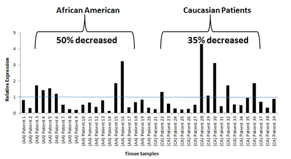 Fig 5: miR-152 expression in AA and CA matched normal tumor cohort.