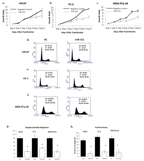 Fig 6: Restoring miR-152 expression decreases cell proliferation, migration, and invasion.