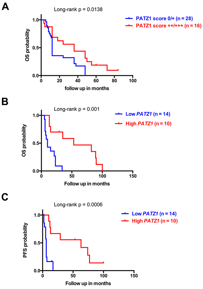 PATZ1 expression negatively correlates with worse survival in GBM patients.