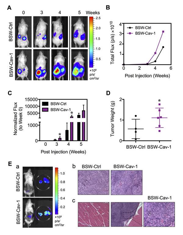 Cav-1 promotes tumor growth and progression