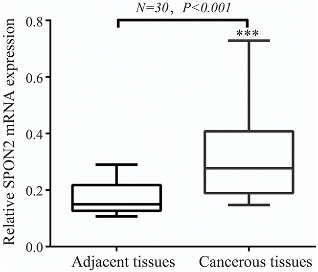 SPON2 mRNA level was significantly higher in pulmonary ADCs tissues than in adjacent normal tissues.