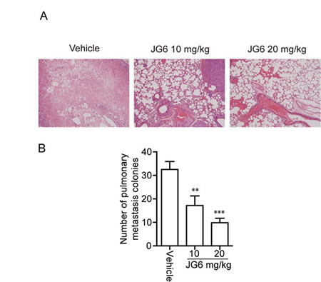 Fig 5: JG6 inhibits breast cancer metastasis (A) Effect of JG6 on lung metastasis of MDA-MB-435 breast carcinoma orthotopic xenografts in nude mice.