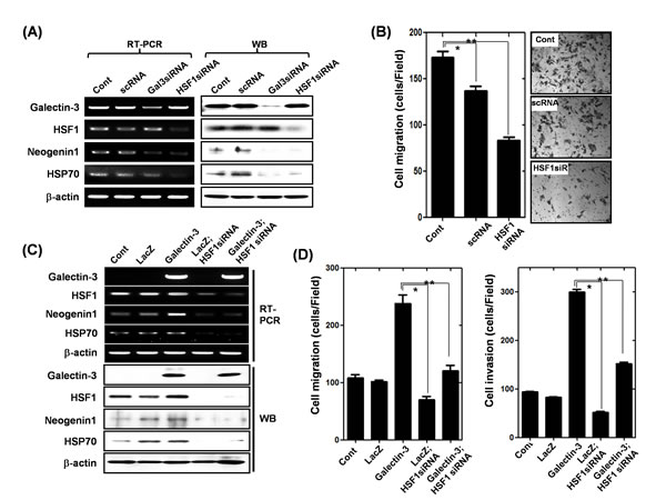 Effect of HSF-1 depletion on the expression of neogenin-1 and gastric cancer cell motility (A) Detection of mRNA and protein levels of galectin-3, HSF-1, HSP70, and neogenin-1 after transfection of AGS cells with scRNA, galectin-3 siRNA and HSF-1 siRNA.
