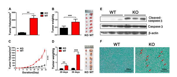 Adiponectin deficiency inhibits pancreatic cancer cell growth in vivo.