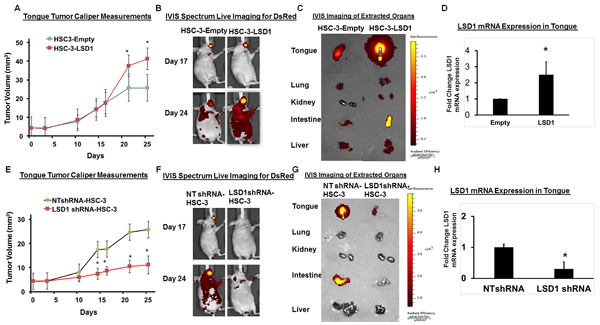 LSD1 overexpression promotes OSCC growth and metastasis: