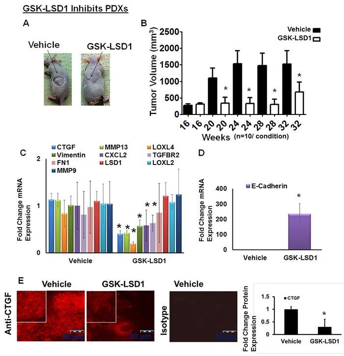 Blocking aberrant LSD1 affects expression of CTGF, LOXL4 and MMP13 in a pre-existing tonsillar OSCC patient-derived xenograft model (PDX):