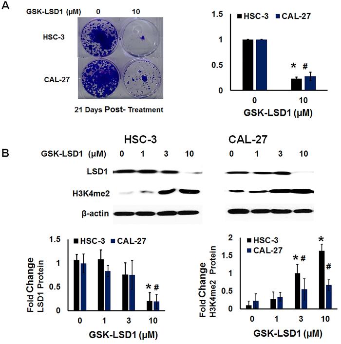 LSD1 inhibition restores dimethylation and inhibits clonogenic survival of non-metastatic CAL-27 and metastatic HSC-3 cells in vitro:
