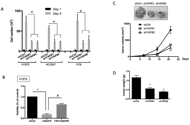 Roles of YAP1 in cell proliferation, survival and tumor growth.