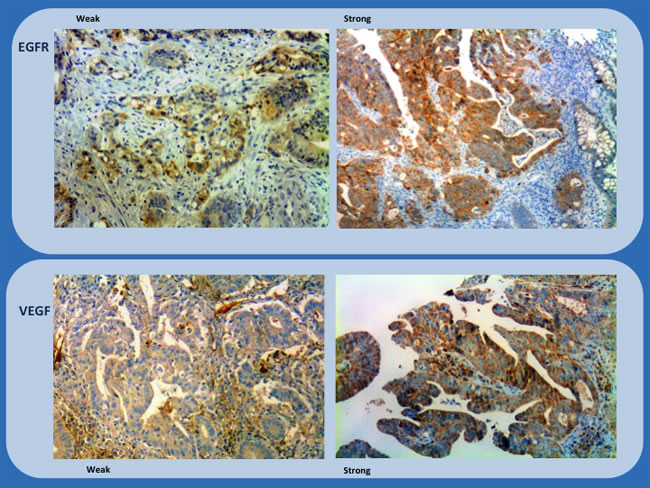 Immunohistochemistry study of biopsies (EGFR and VEGF) showing representative examples of weak and strong staining (x200 and x100).