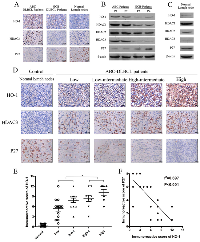 Expressions of HO-1, HDAC3 and P27 in diffuse large B-cell lymphoma (DLBCL).