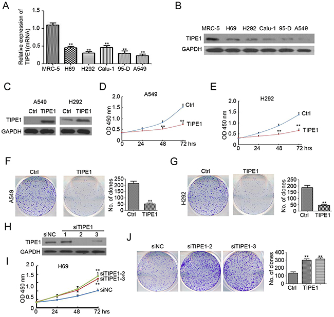 TIPE1 inhibits lung cancer growth and colony formation.