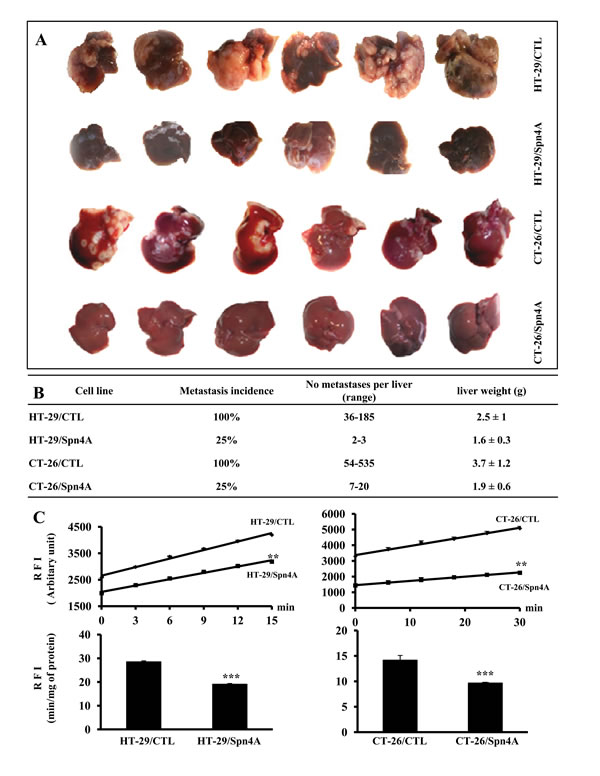Figure 7. Repression of experimental liver metastasis by Spn4A.