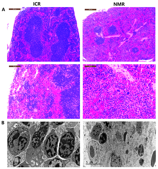 Differences in tissue morphology characteristics between NMR and ICR mouse spleens.