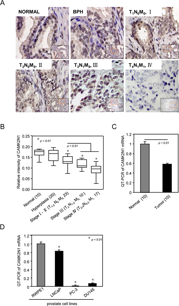 CAMK2N1 abundance is reduced in human prostate cancer.