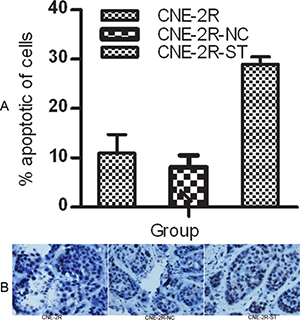 STAT1 inhibition might promote apoptosis.