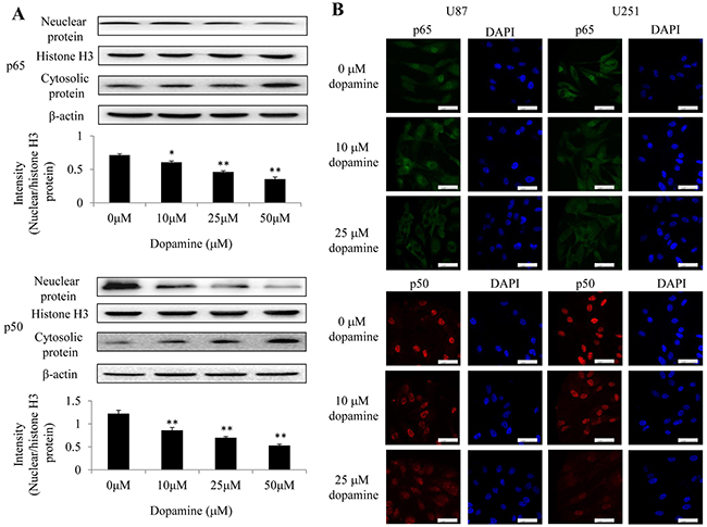 Dopamine inhibited NF-κB translocation from the cytoplasm to the nucleus in glioma cells.
