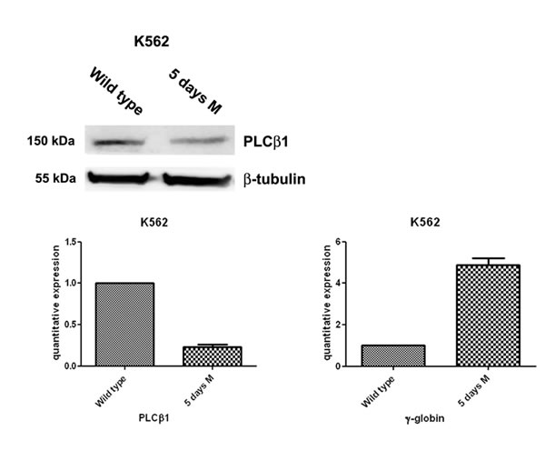 Fig 1: PLCβ1 expression decreases during erythroid MTH induction of human K562 cells.