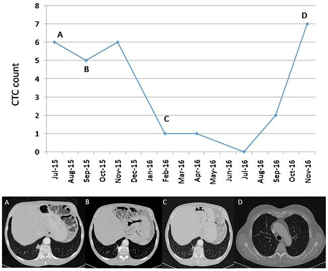 Correlation between CTCs and clinical course in patient 3.