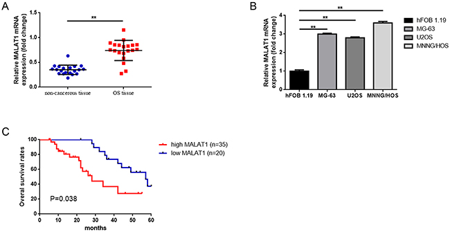 Elevated MALAT1 was expressed and correlated with poor prognosis in osteosarcoma patients.