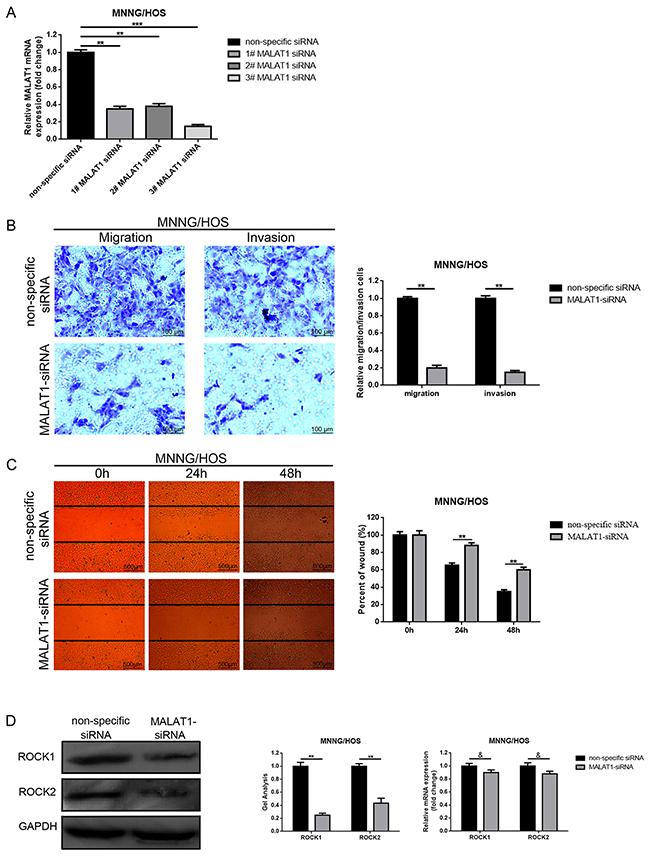 Depression of MALAT1 inhibited migration/invasion and decreased ROCK1/ROCK2 expression in osteosarcoma cells MNNG/HOS.