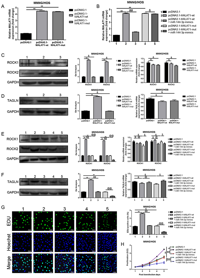 MALAT1 promoted ROCK1/ROCK2 expression and their mediated proliferation and metastasis in a ceRNA manner via miR-144-3p.