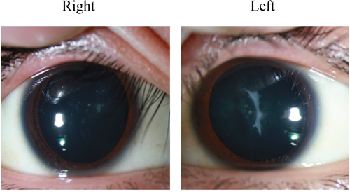 Anterior subcapsular cataracts and posterior subcapsular cataracts in both lens.