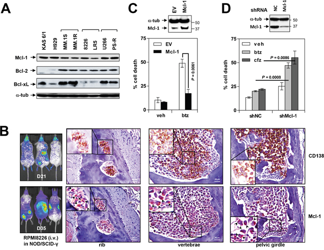 Mcl-1 is highly expressed in MM cell lines in vitro and in vivo and is associated with bortezomib resistance.