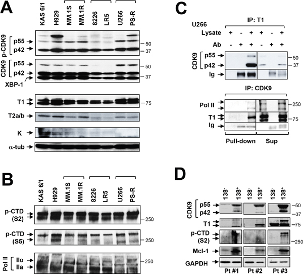 MM cell lines and primary MM but not normal cells display P-TEFb activation and high Mcl-1 expression.