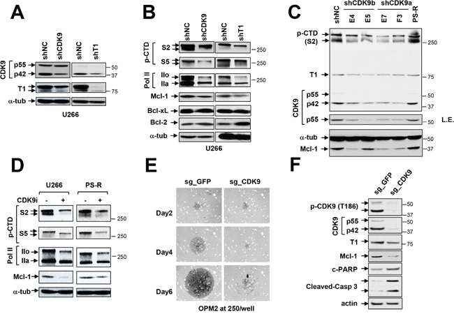 Genetic or pharmacologic disruption of the transcriptional regulatory apparatus down-regulates Mcl-1 in bortezomib-sensitive or -resistant MM cells.