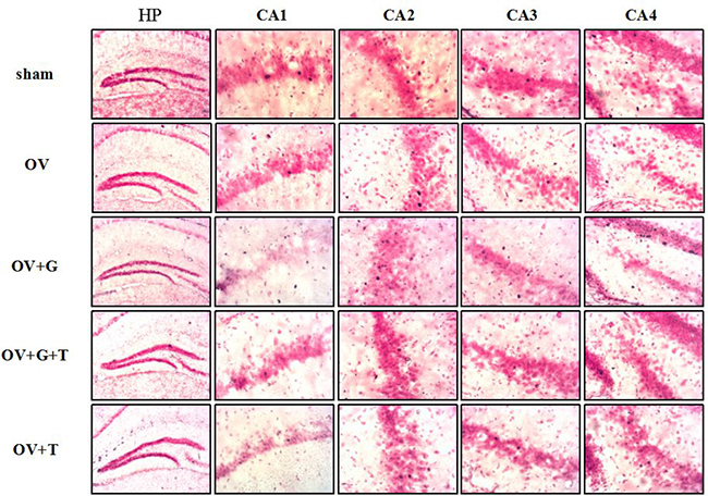 Ovariectomy decreases the c-Fos-positive cells in hippocampus.