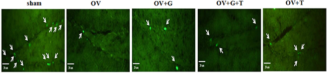 Ghrelin increased BrdU expression in the dendate gyrus of the hippocampus.