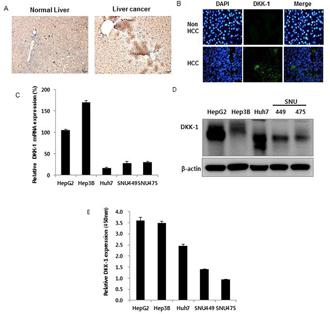 Dickkopf-1 (DKK-1) expression in hepatocellular carcinoma (HCC).