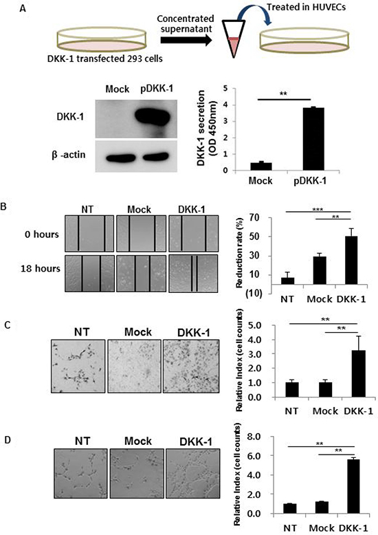 DKK-1 increases the motility, invasion, and tube formation of human umbilical vein endothelial cells (HUVECs).