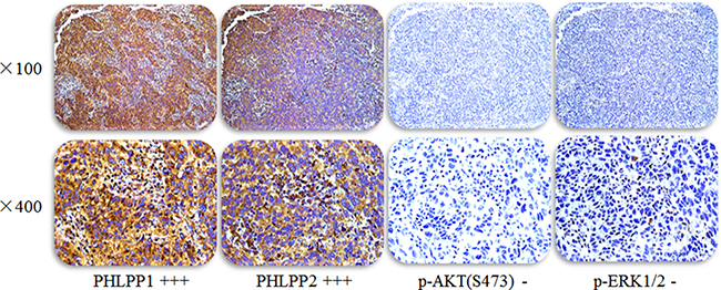 Representative images of PHLPP1 and PHLPP2 and p-AKT(S473) and p-ERK1/2 expression in the same lung adenocarcinoma patient with EGFR TKI treatment effectively.