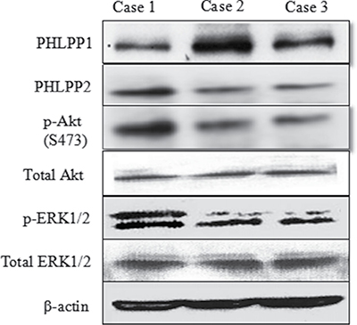 Representative images of Western blot of PHLPP and p-Akt and p-ERK in fresh tissue of three typical patients.