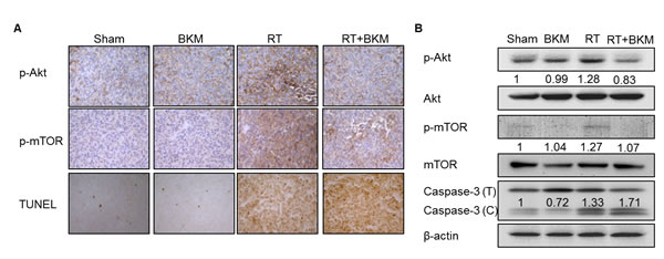 Combined radiotherapy (RT) and BKM120 inhibits RT-activated PI3K/Akt signaling and enhances BNL cell apoptosis in vivo.