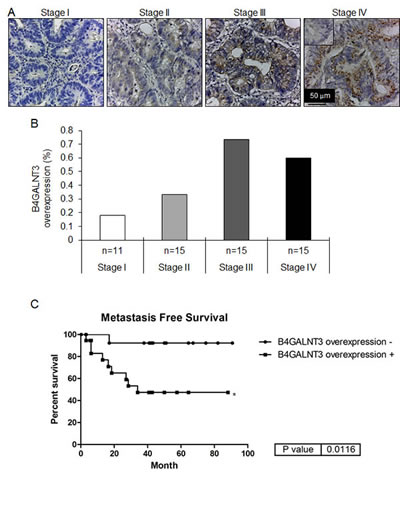 Immunohistochemistry of B4GALNT3 in human colorectal cancer.