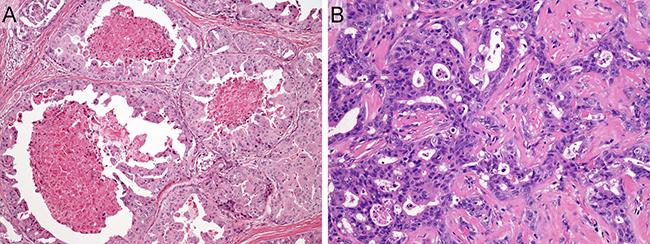 Representative histologic features of salivary duct carcinoma case.